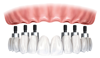 Picture of entire tooth implant