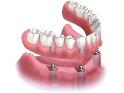 Picture of  removable dentures