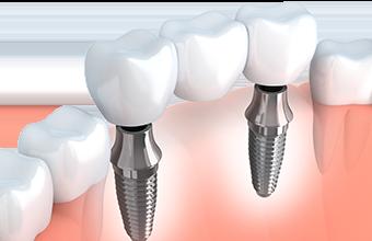 Picture of implant bridge