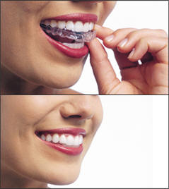 Invisalign® Clear Teeth Straightening in San Diego