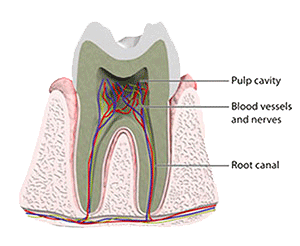 Picture of infected tooth