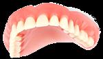 Picture of Full Dentures